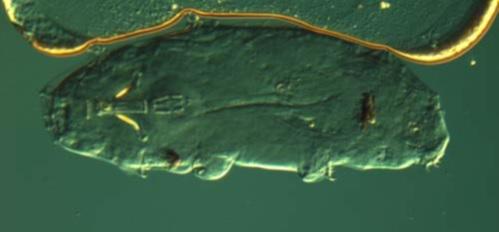 Um tardigrado Limno-terrestre comum.